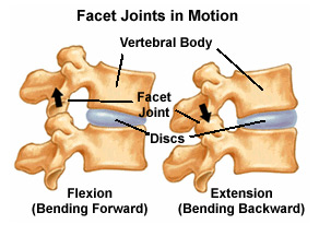 Facet_Joint_Injections_2